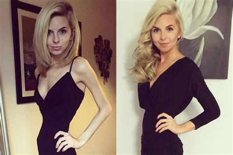 Anorexic woman, 23, whose weight dropped to just 6st makes