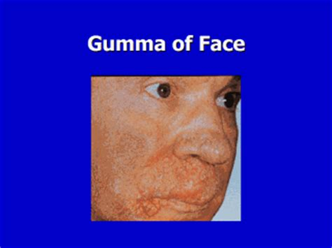 A gumma is a nonspecific lesion, similar to a granuloma